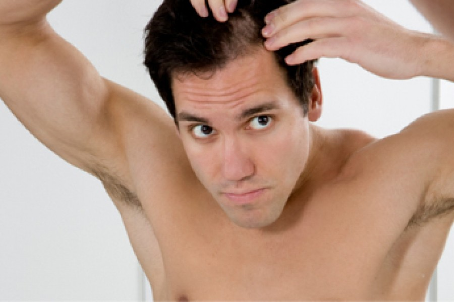 Nutritional  Deficiency leads to hair loss!