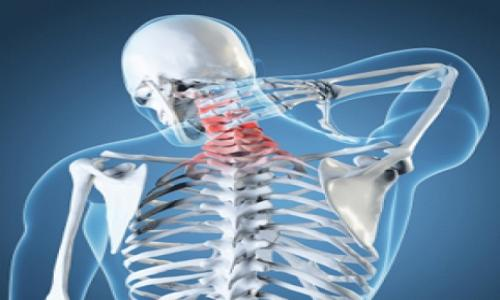 Signs and symptoms of arthritis of the neck